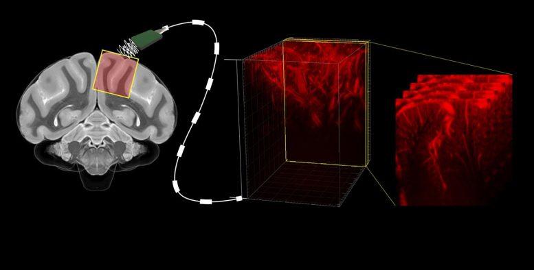 陈天桥雒芊芊脑机接口中心新研究登顶期刊《神经元》