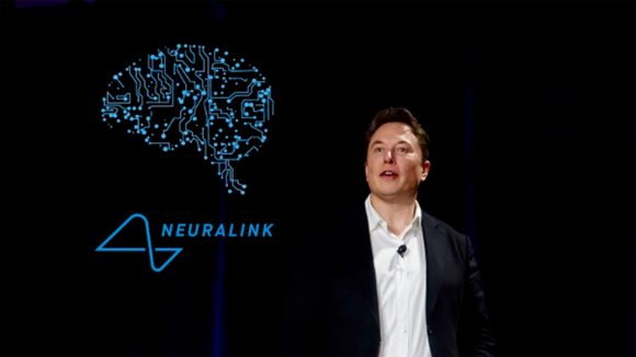 马斯克的脑机接口公司Neuralink获2.05亿美元C轮投资